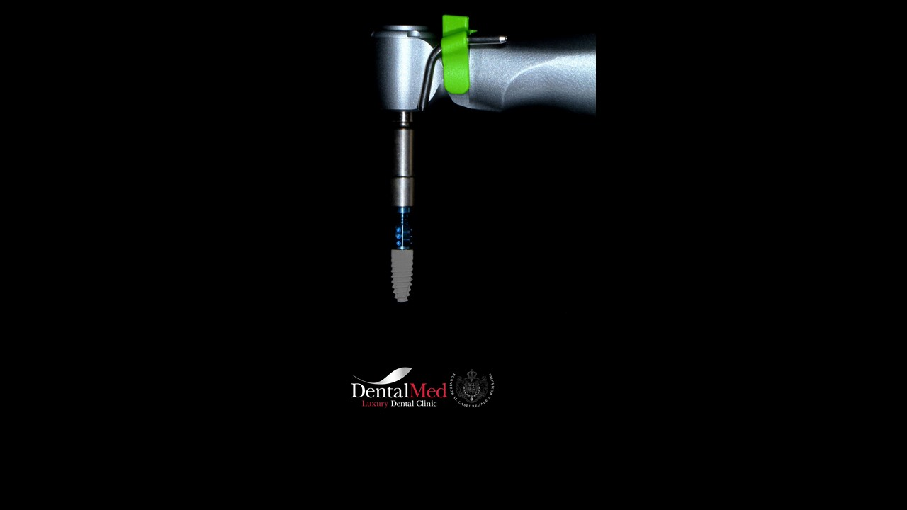 Implant dentar Straumann