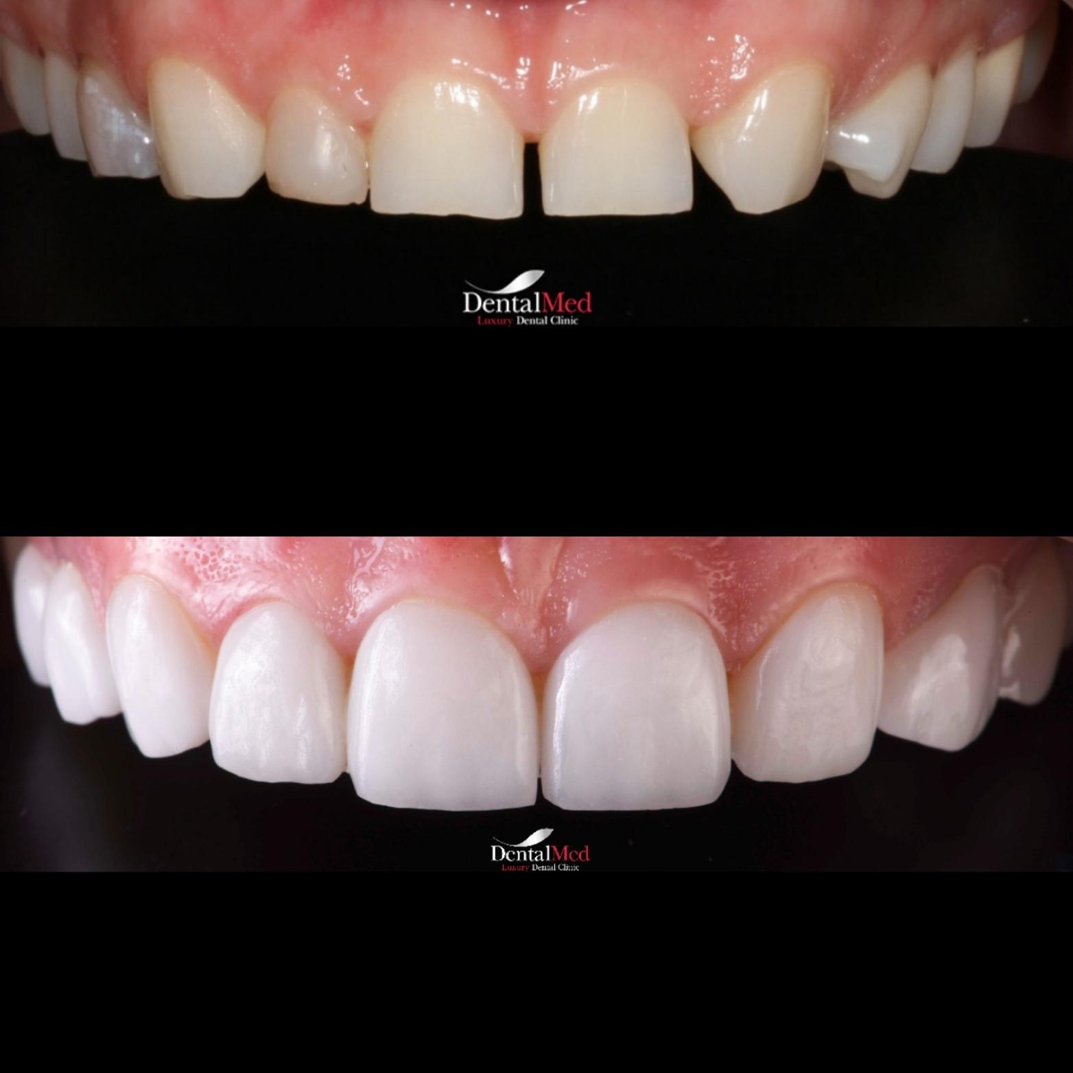 Fatete dentare portelan