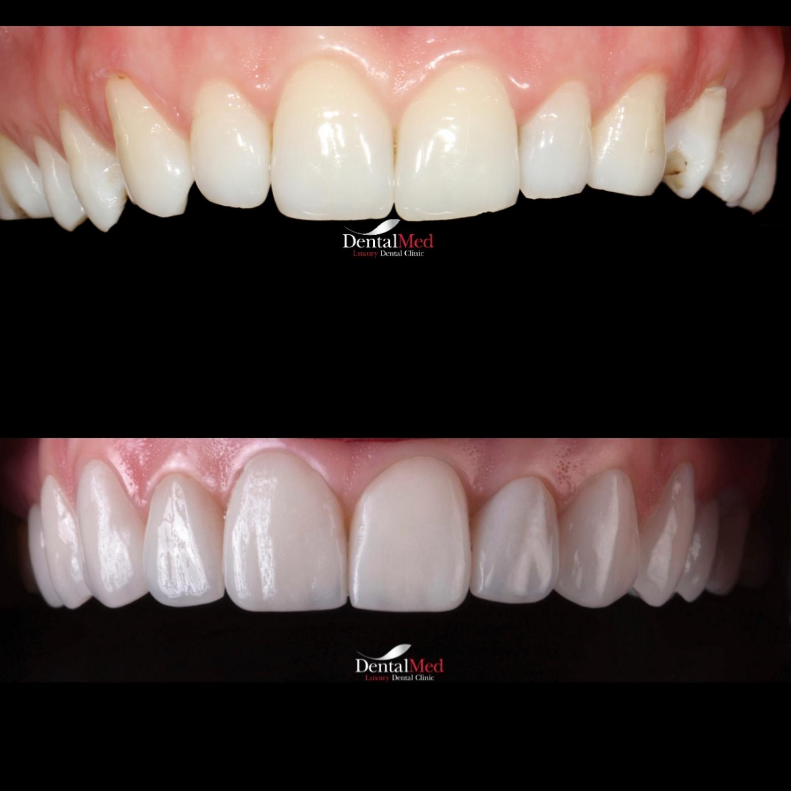 Fatete dentare naturale