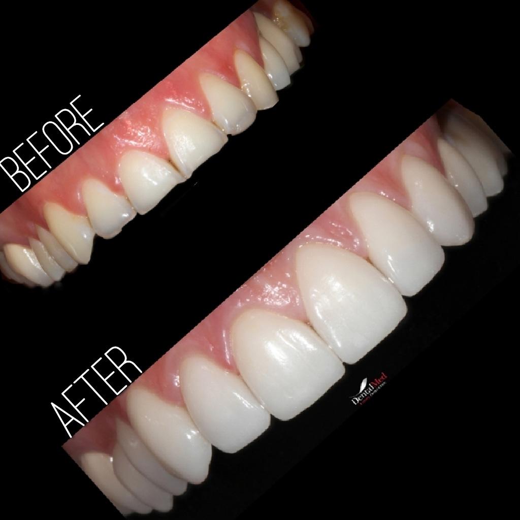 Fatete dentare portelan poze inainte si dupa