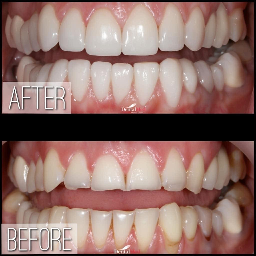 Fatete dentare portelan inainte si dupa