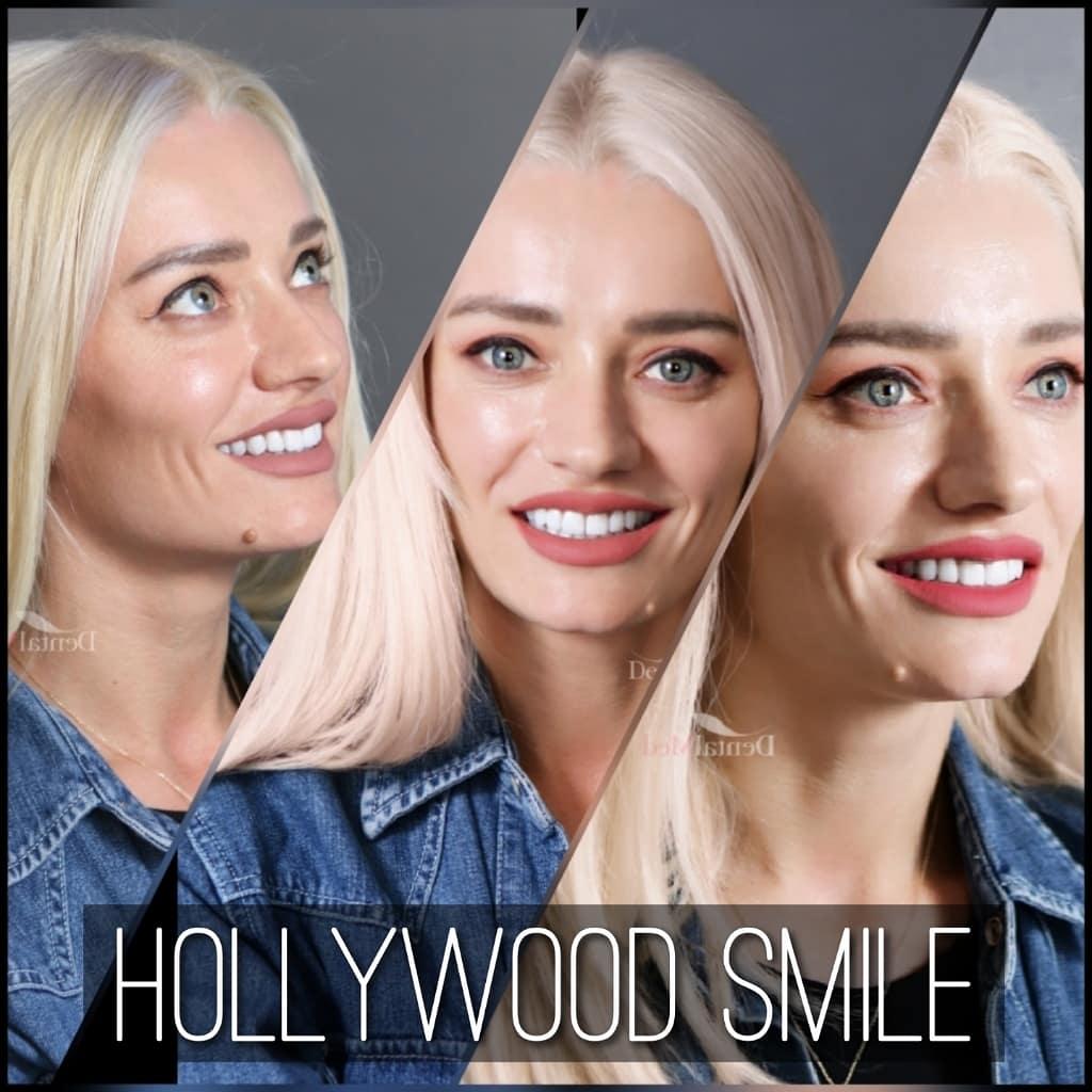 IMG 20190604 094539 647 Fatete dentare