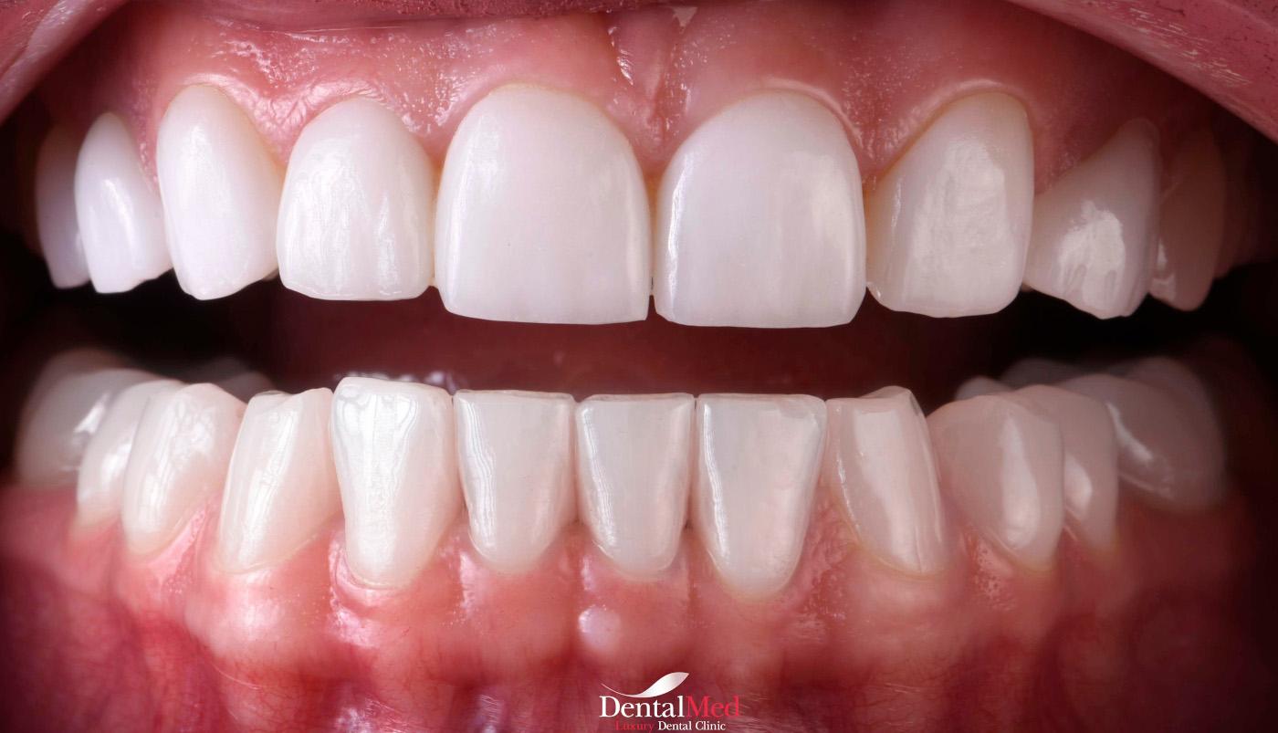 RD20029 crop cu sigla Fatete dentare