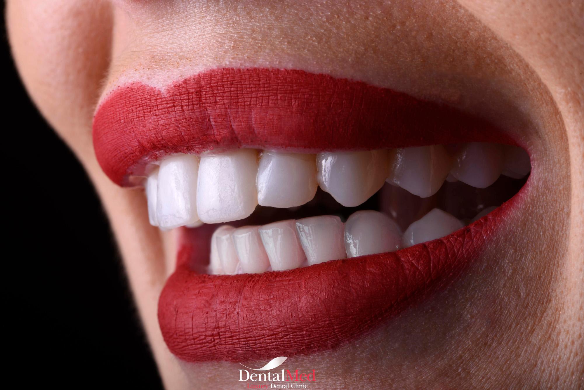 Fatete dentare ceramica