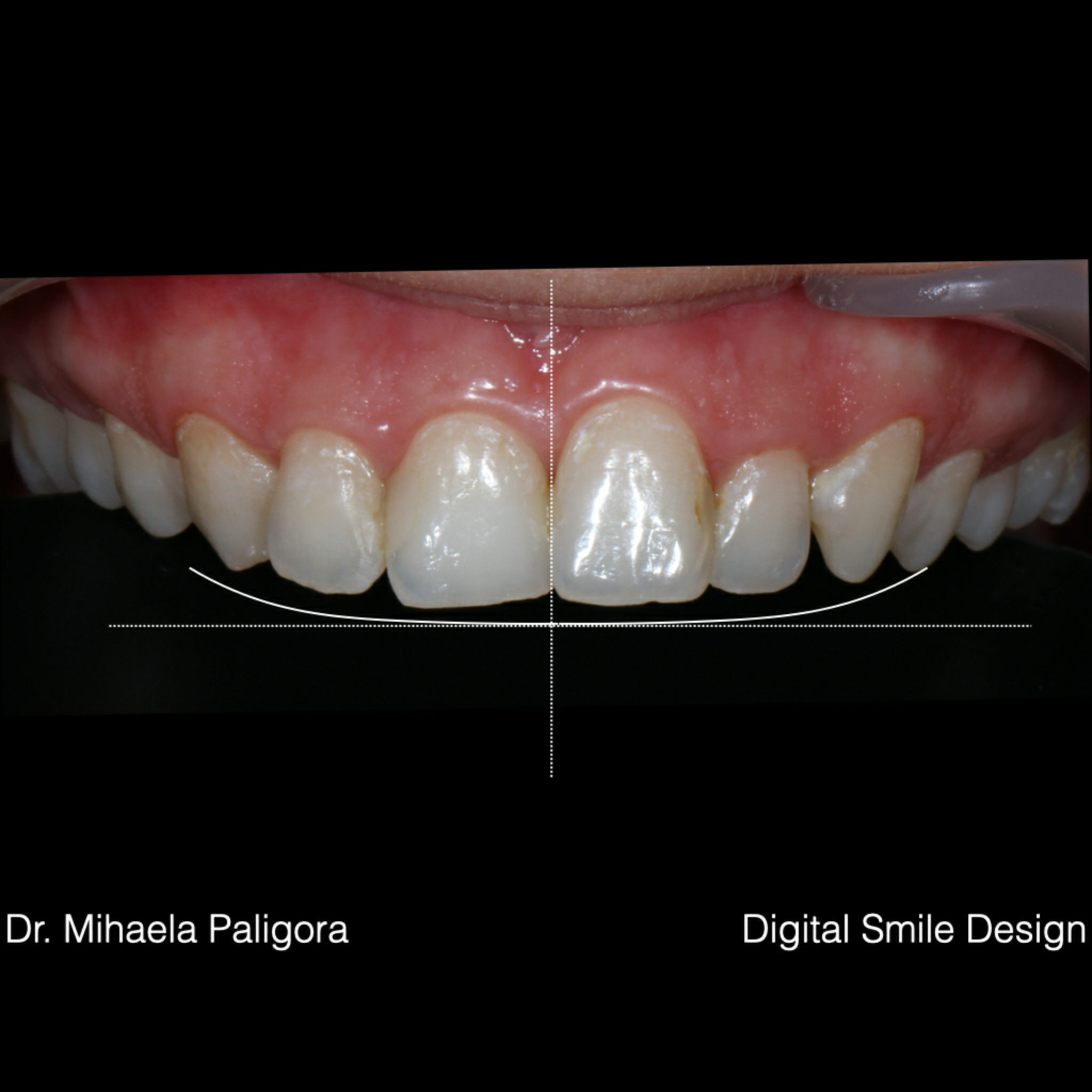 Fatete dentare Digital Smile Design (DSD)