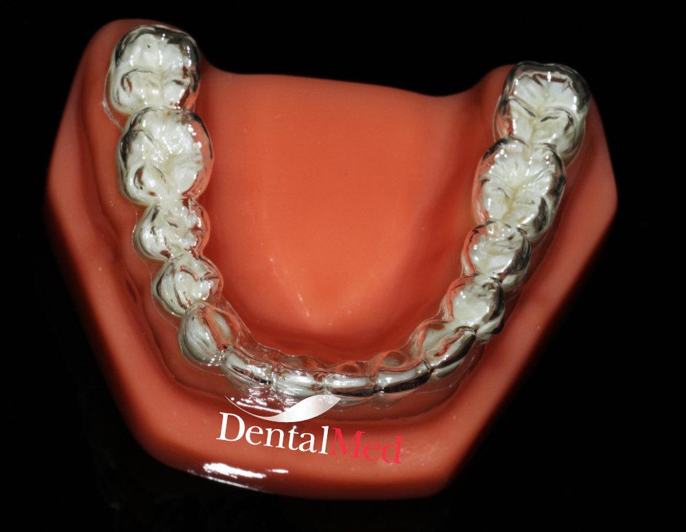 Aparat dentar Gutiere transparente INVISALIGN