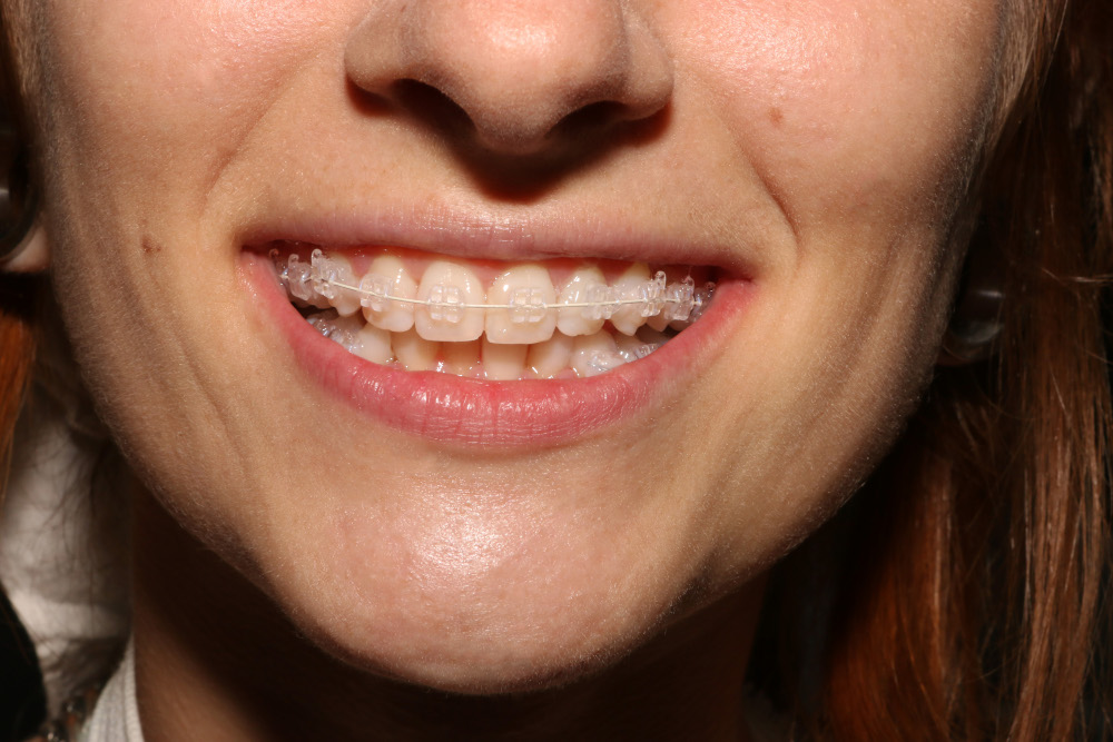 Bianca Adam Aparat dentar la DentalMed