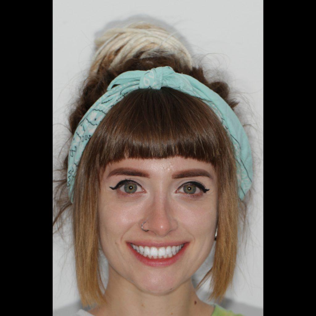 Bianca Adam aparat dentar