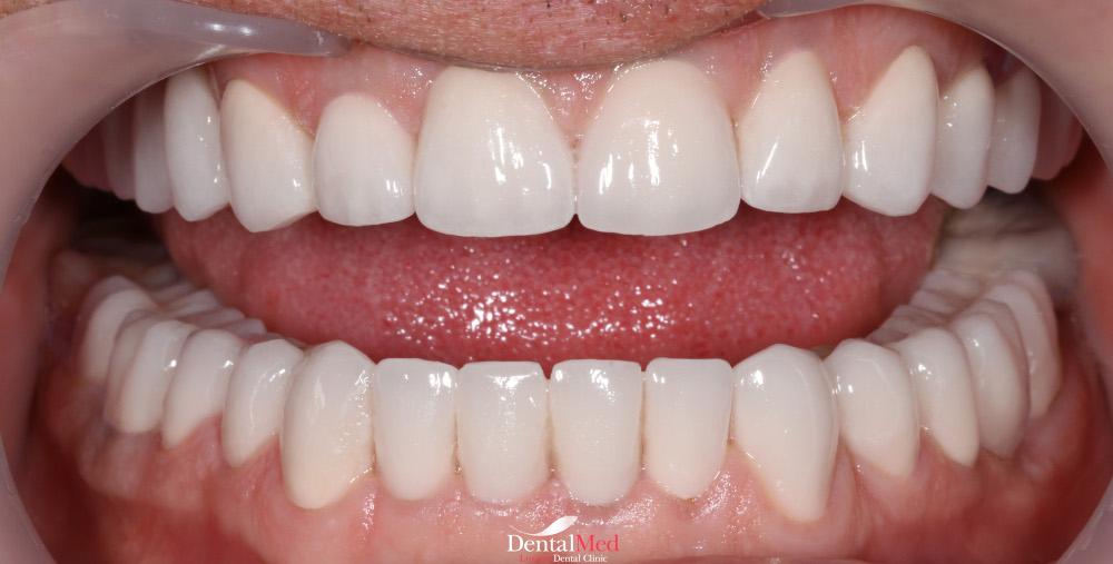 Dupa albirea dintilor