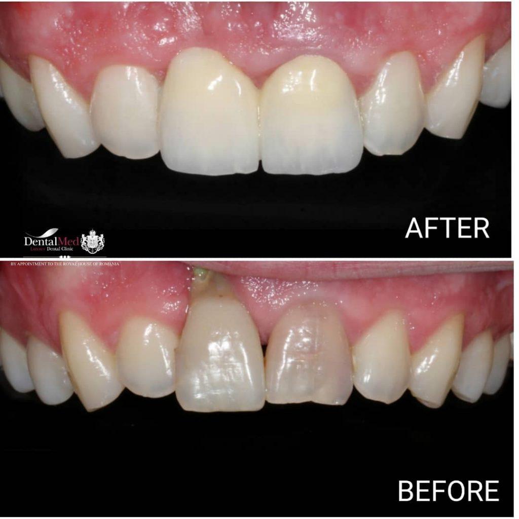Emax Coroane dentare