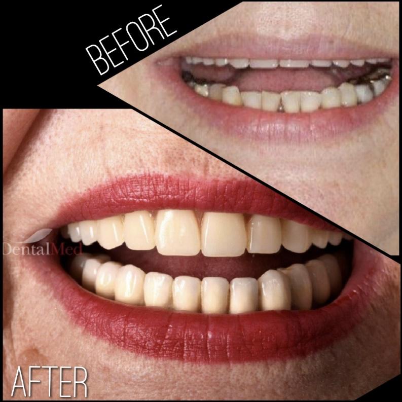 Implant dentar osteoporoza