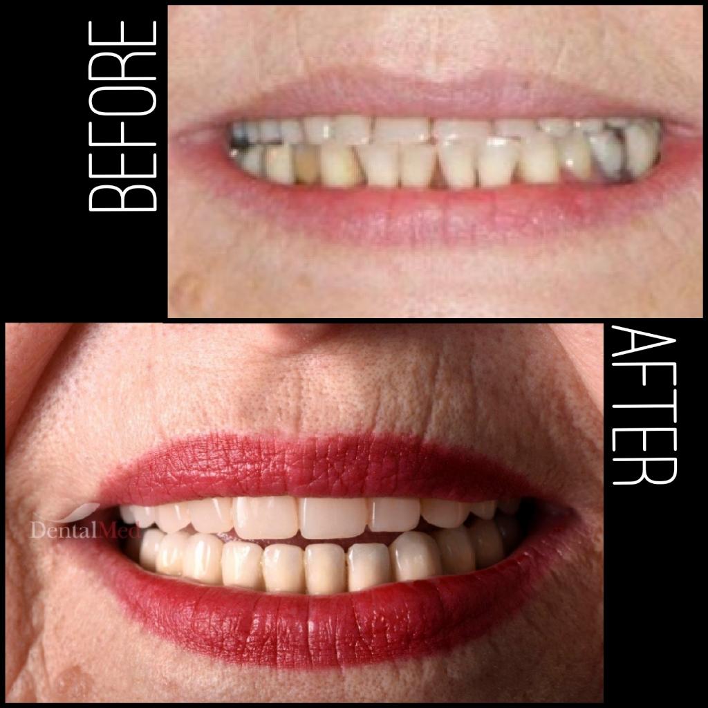 quicksquarenew 2019521224212472 Pot beneficia de implant dentar dacă am osteoporoză?