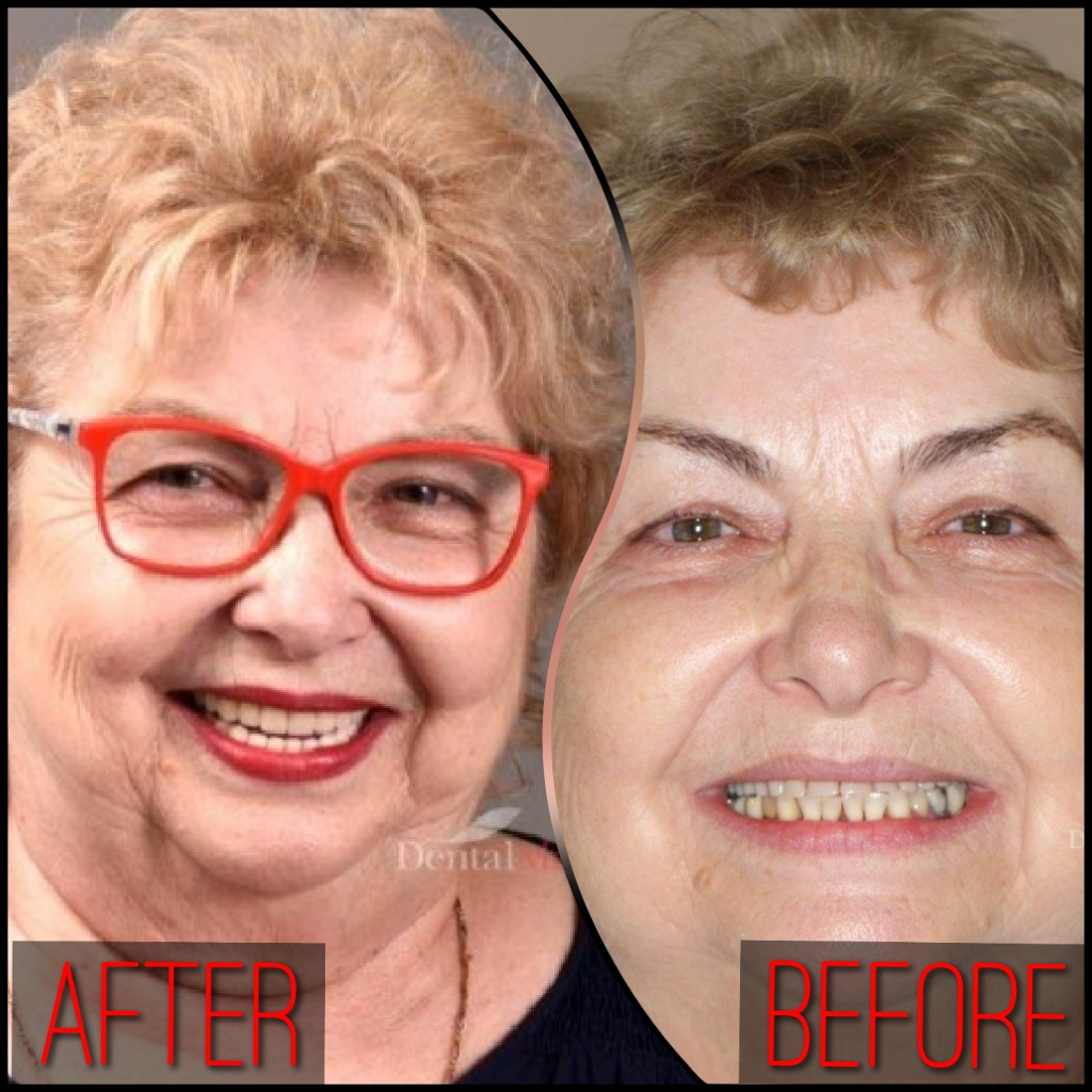 quicksquarenew 20195212348195 Pot beneficia de implant dentar dacă am osteoporoză?