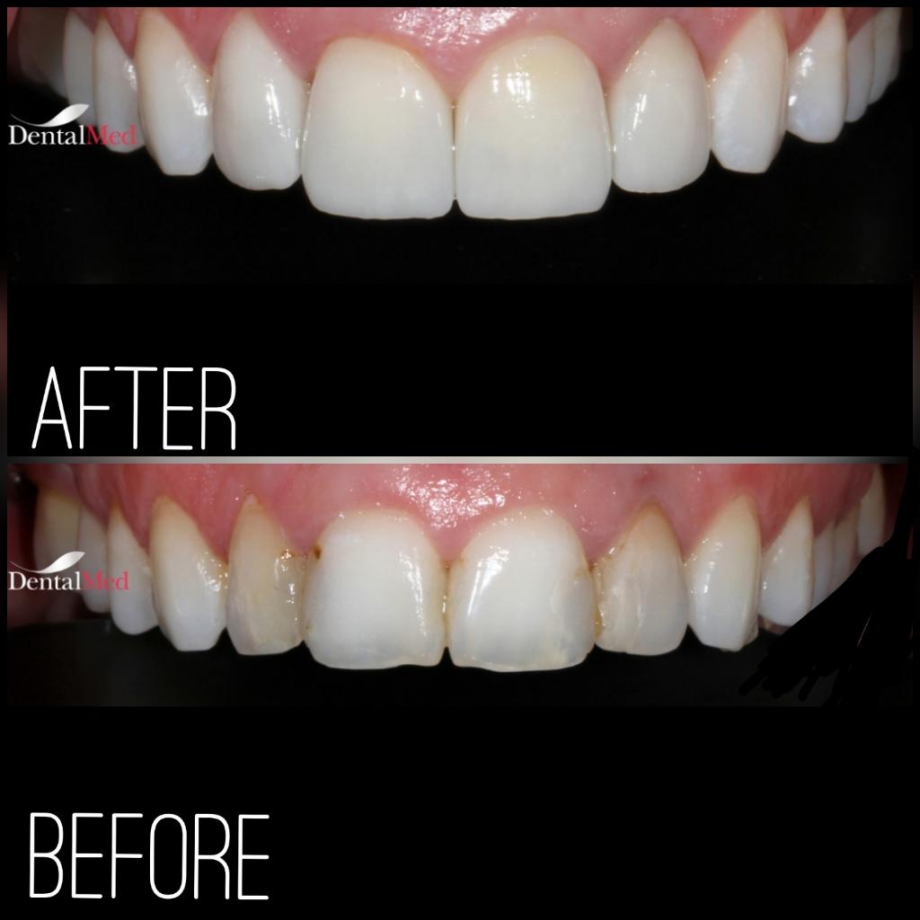 quicksquarenew 201965215822134 Estetica dentara si protetica - coroana si proteza dentara