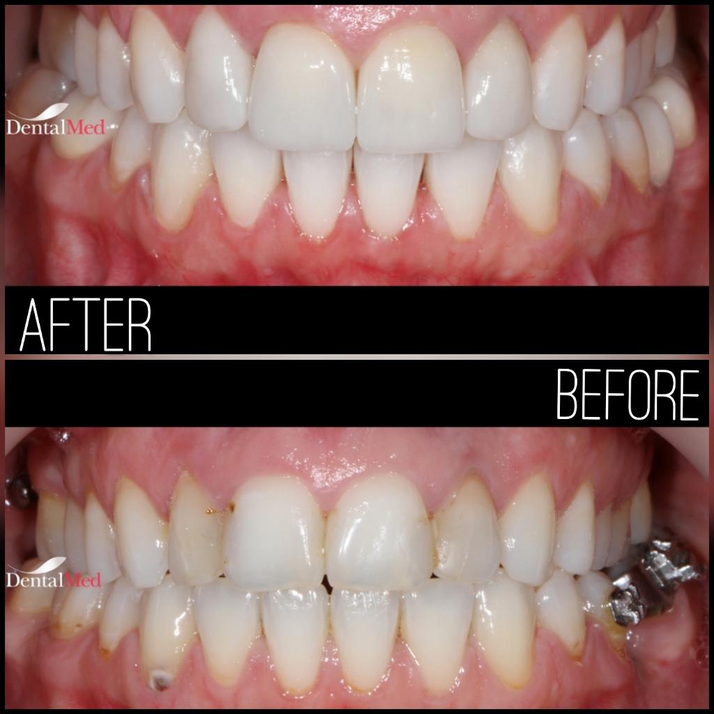 quicksquarenew 20196522150360 Estetica dentara si protetica - coroana si proteza dentara