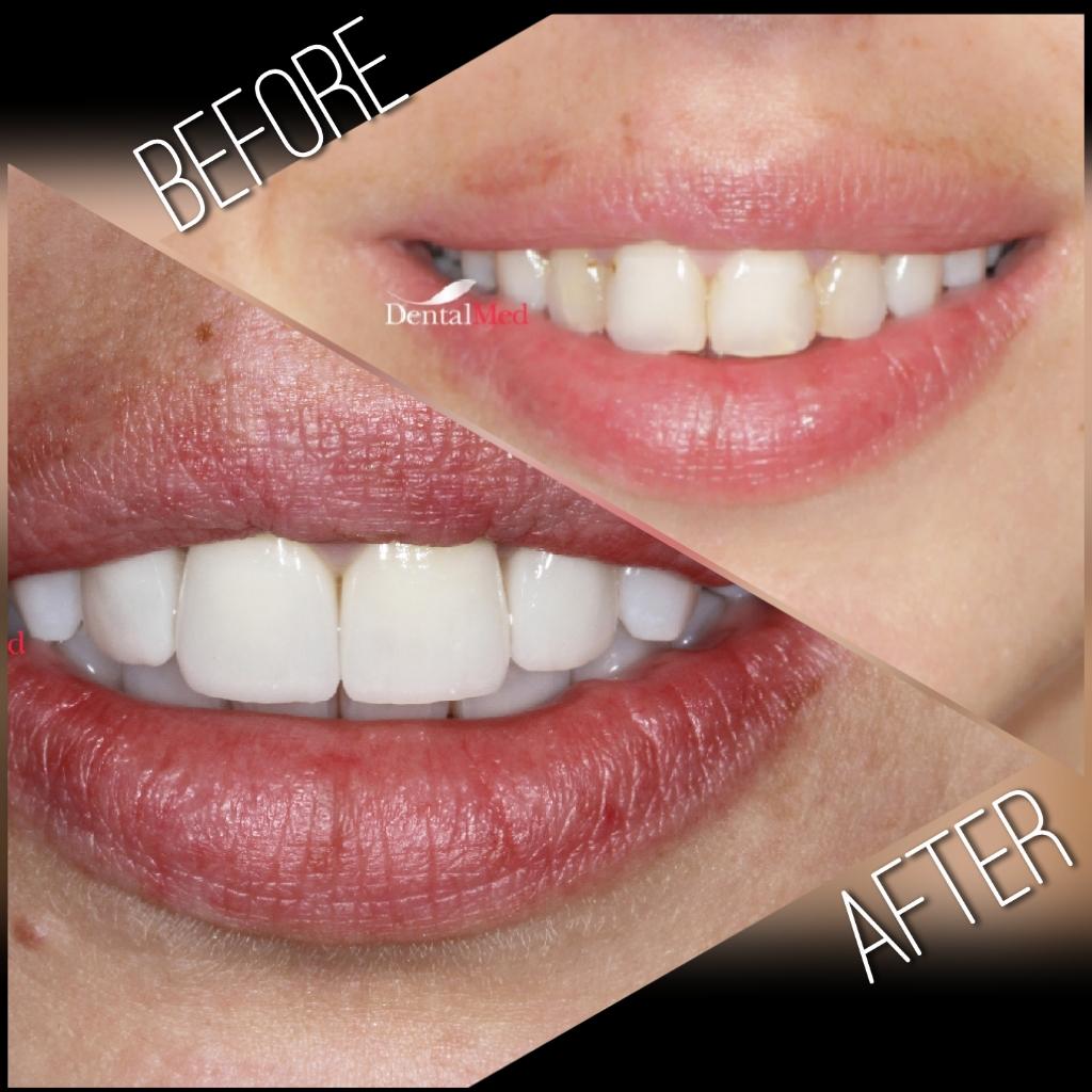 quicksquarenew 201965221739445 Estetica dentara si protetica - coroana si proteza dentara