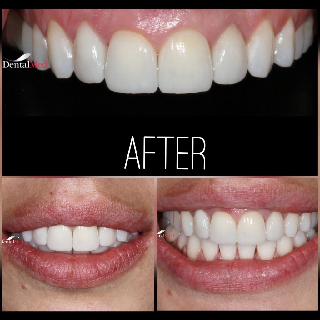 quicksquarenew 201965224618951 Estetica dentara si protetica - coroana si proteza dentara