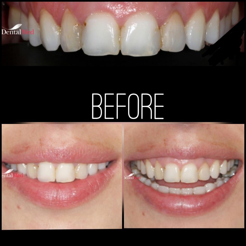 quicksquarenew 20196522512662 Estetica dentara si protetica - coroana si proteza dentara