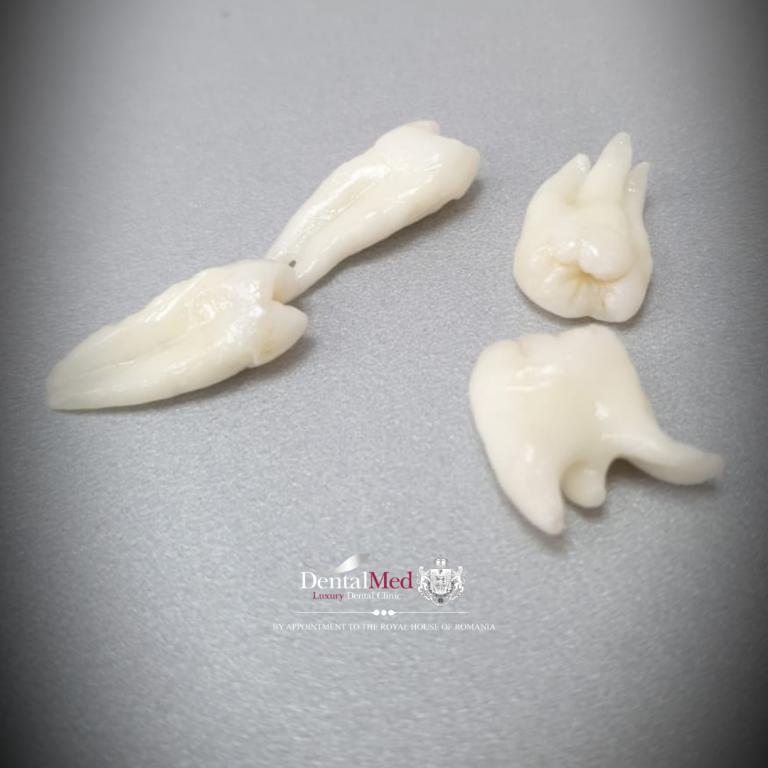 1 20210701 110321 0000 1 Extractiile dentare simple sau complexe