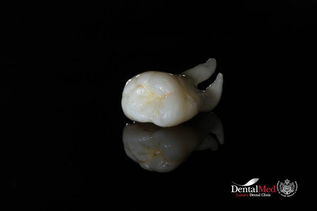 extractii dentare