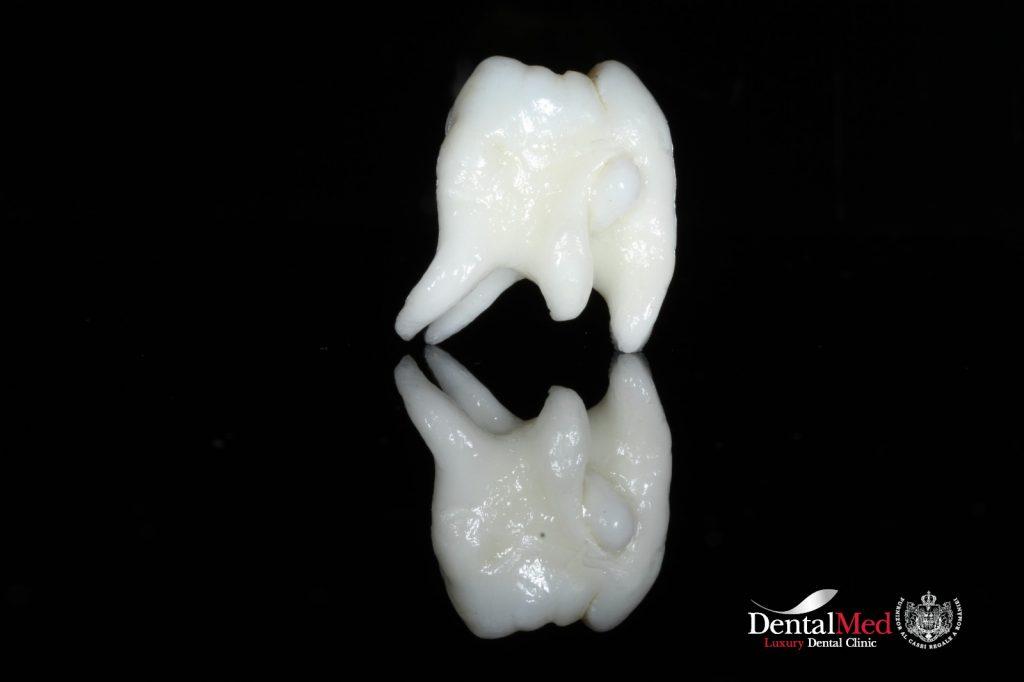 extractii dentare 2 Extractiile dentare simple sau complexe
