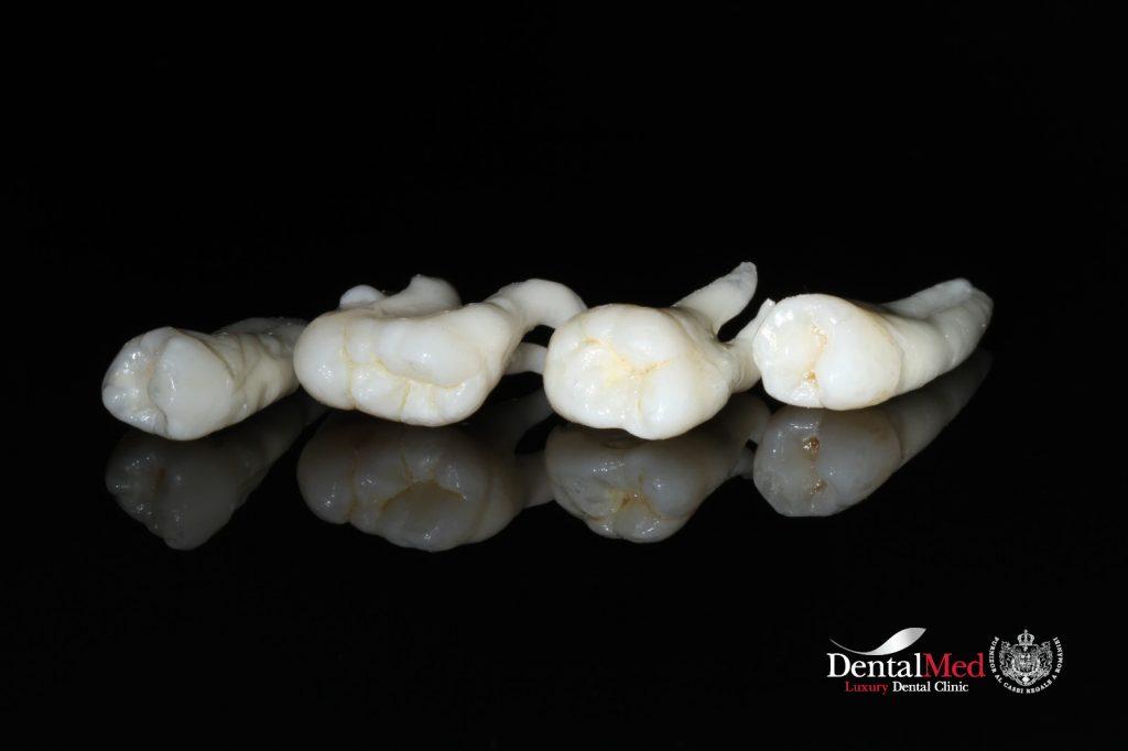 extractii dentare2 Extractiile dentare simple sau complexe