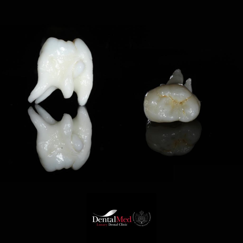4 20210701 223542 0003 Extractiile dentare simple sau complexe