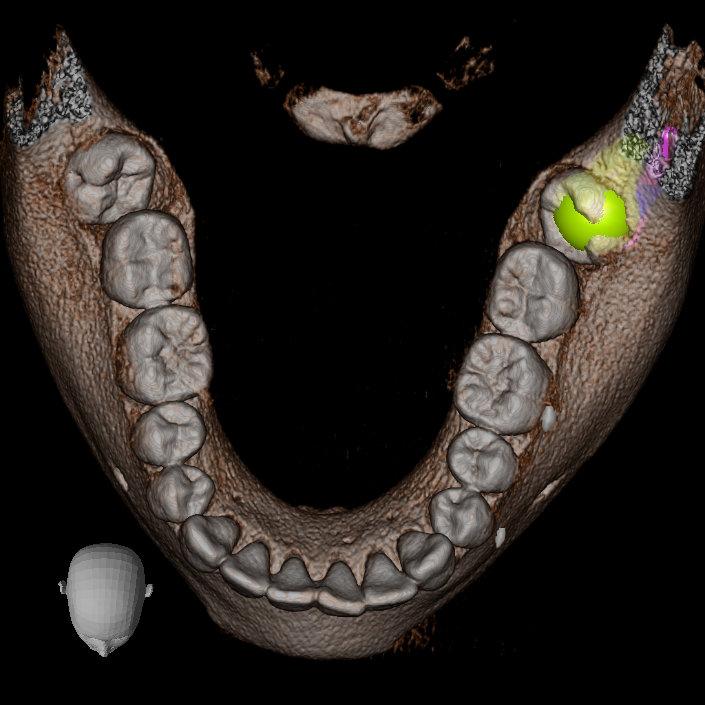 IMG 20210629 WA0015 Extractiile dentare simple sau complexe