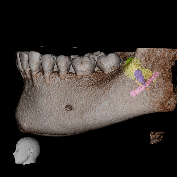 IMG 20210629 WA0019 Extractiile dentare simple sau complexe