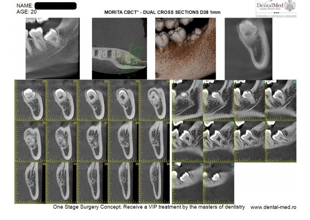 IMG 20210629 WA0020 Extractiile dentare simple sau complexe