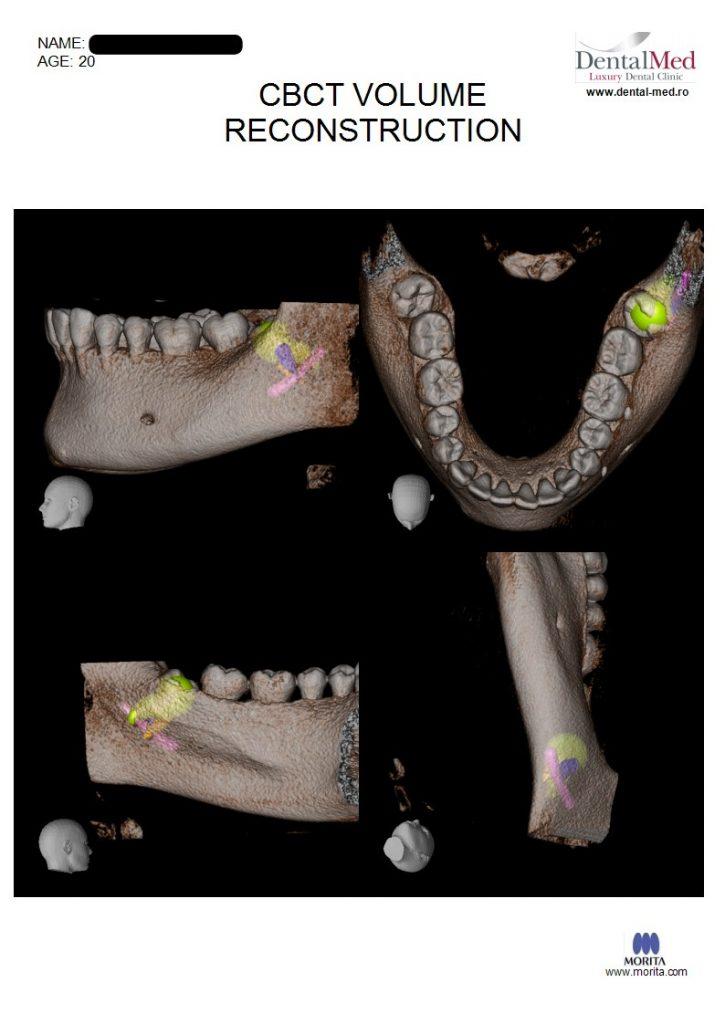 IMG 20210629 WA0021 Extractiile dentare simple sau complexe
