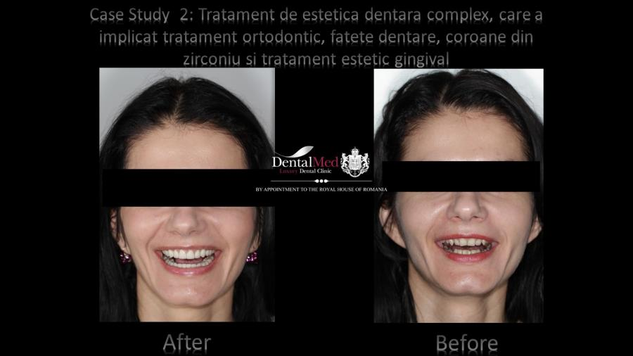 Zirconium Crowns and all ceramic emax Case study 2
