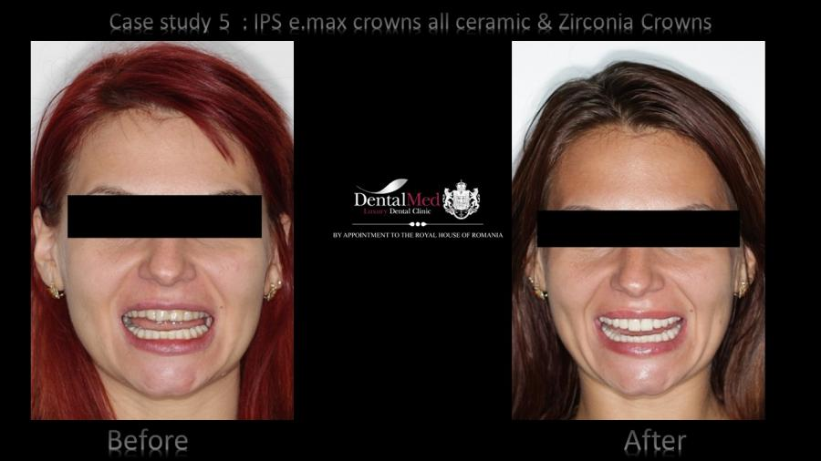 All ceramic e.max crowns and Zirconium Crowns