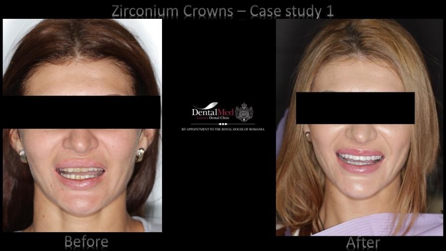 Zirconium Crowns Case Study 1