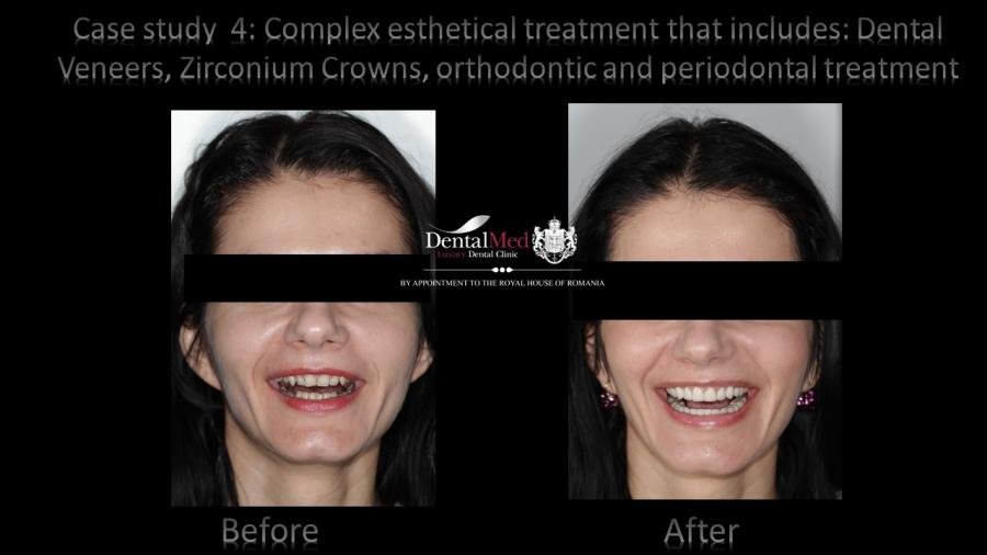 Dental Veneers Case Study 4
